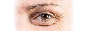 Augenlidkorrektur, Ästhetische Dermatologie - Praxis Prager und Partner