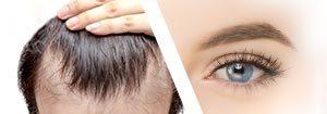 Haartransplantation Ästhetische Dermatologie - Praxis Prager und Partne